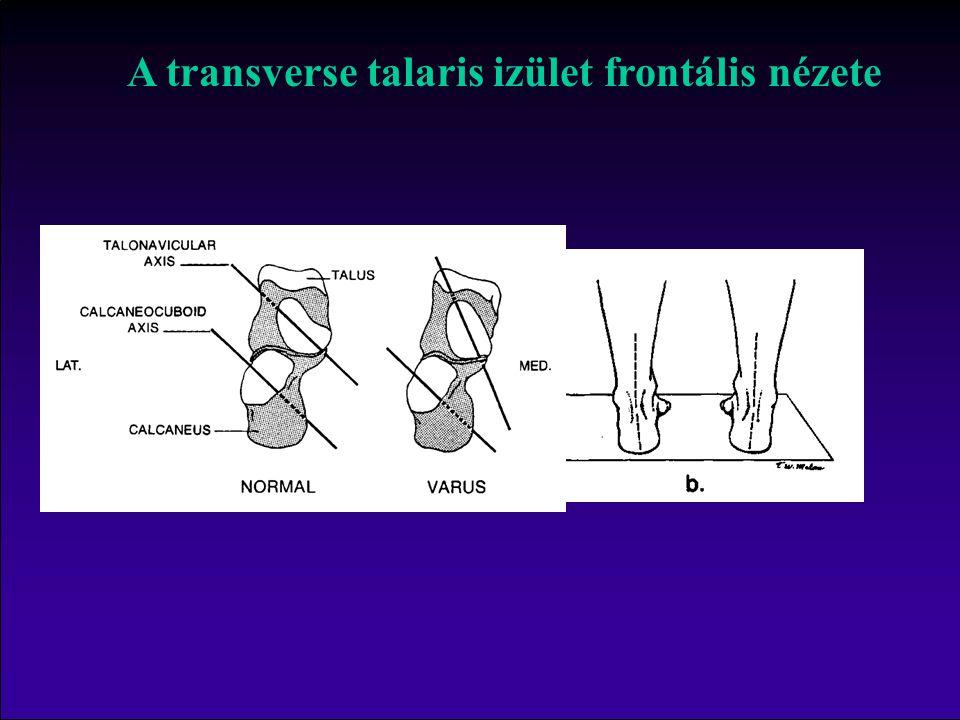 C A transverse talaris izület frontális nézete