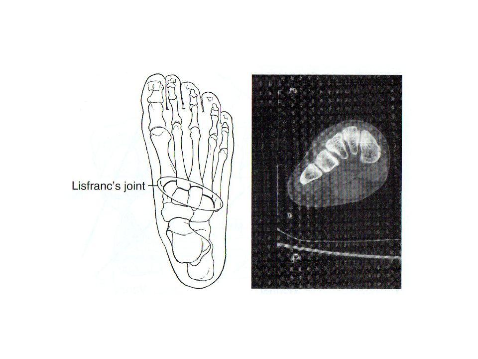 Az intertarsalis és tarsometatarsalis izület Behatárolt mozgás, főleg transzláció csúszással Néhány fokos dorsal flexió, és 15° plantar flexió
