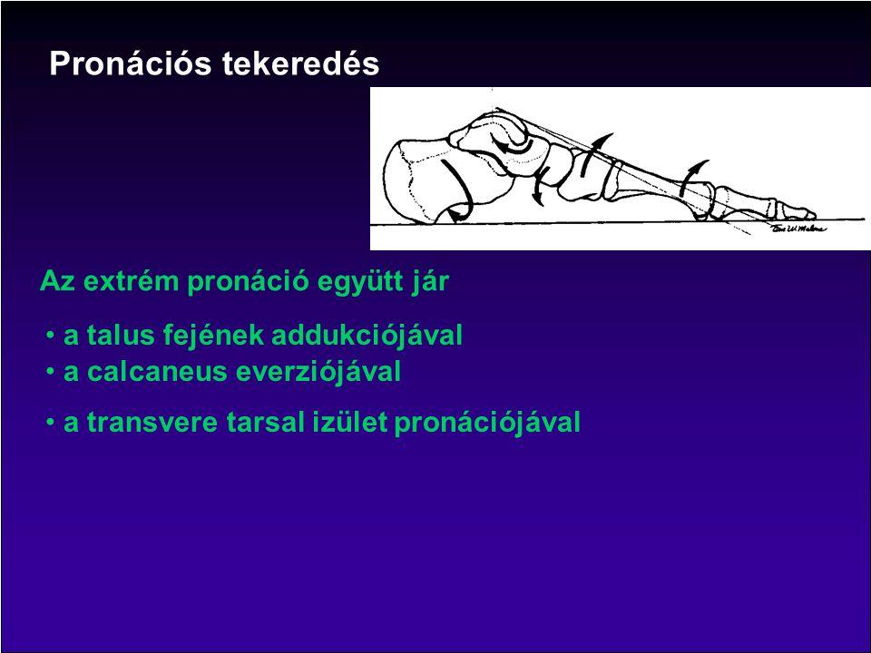 Az extrém pronáció együtt jár a talus fejének addukciójával a calcaneus everziójával a transvere tarsal izület pronációjával Pronációs tekeredés