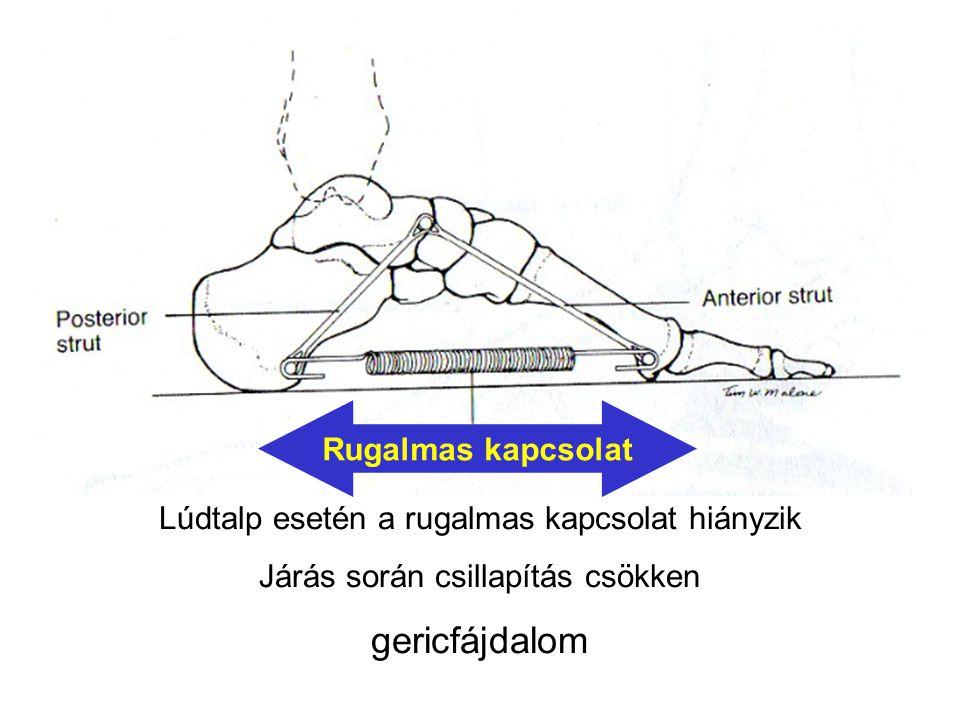 Lúdtalp esetén a rugalmas kapcsolat hiányzik Járás során csillapítás csökken gericfájdalom Rugalmas kapcsolat