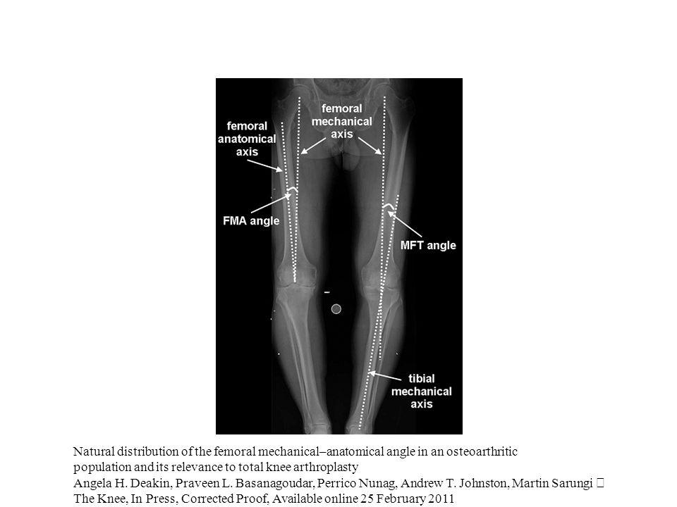 A nyomóerő eloszlása az ízületi felszínen P = Fc / A a meniscusok csökkentik az ízületi felszínt érő nyomást