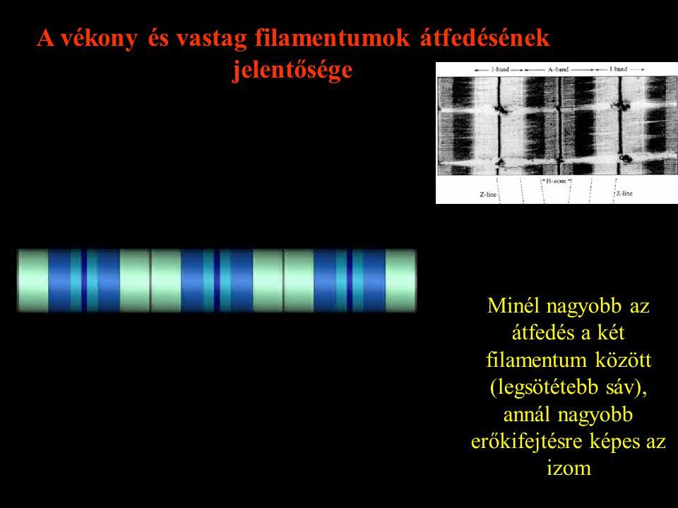 Szarkomérek 2 dimenziós, elektron mikroszkópos képe