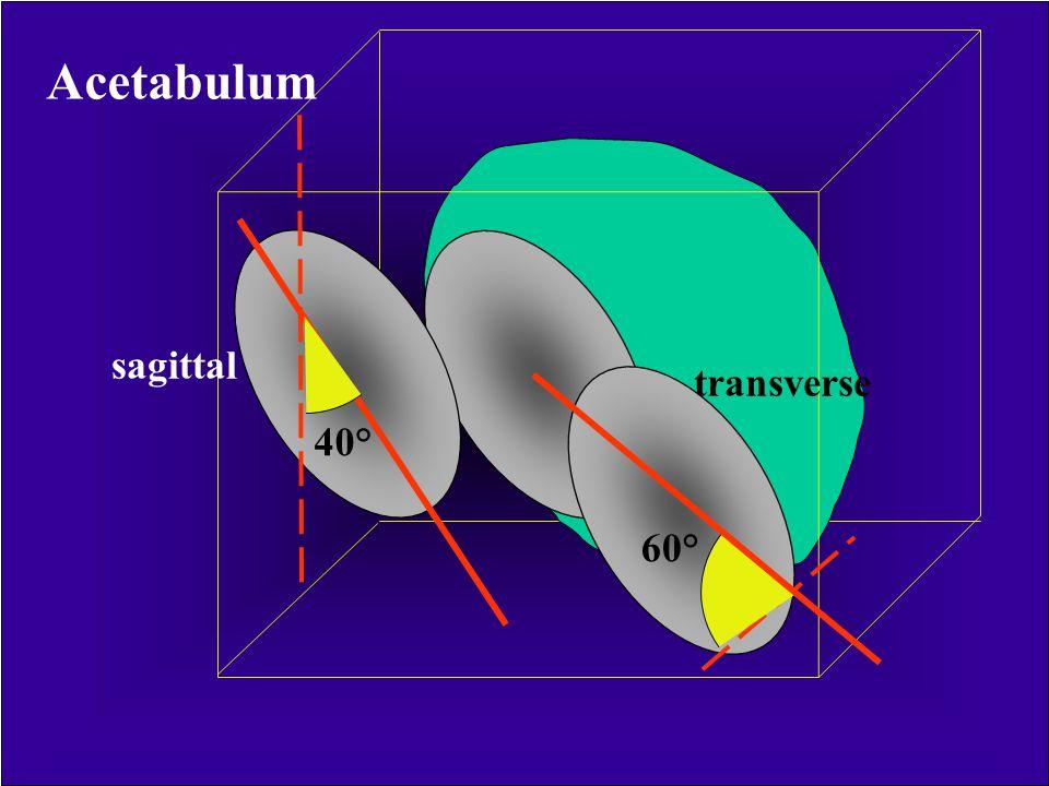 R = 4-5 cm 2/3 gömb alakú Inferior orientáció= 30° Anterior orientáció= 30-40° Acetabulum