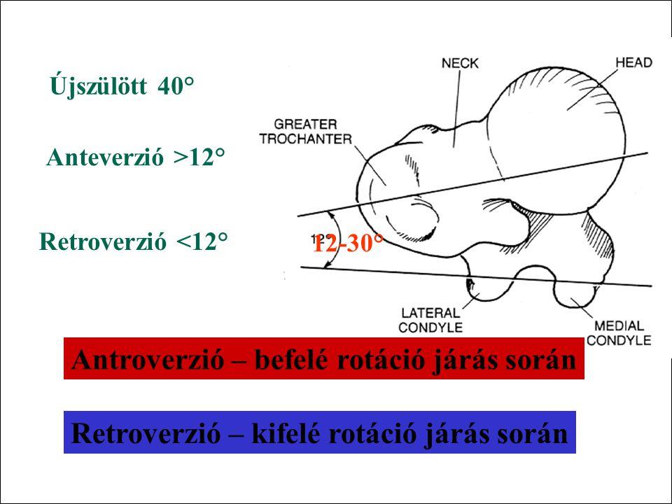 125° <125° >125° colodiaphysealis szög