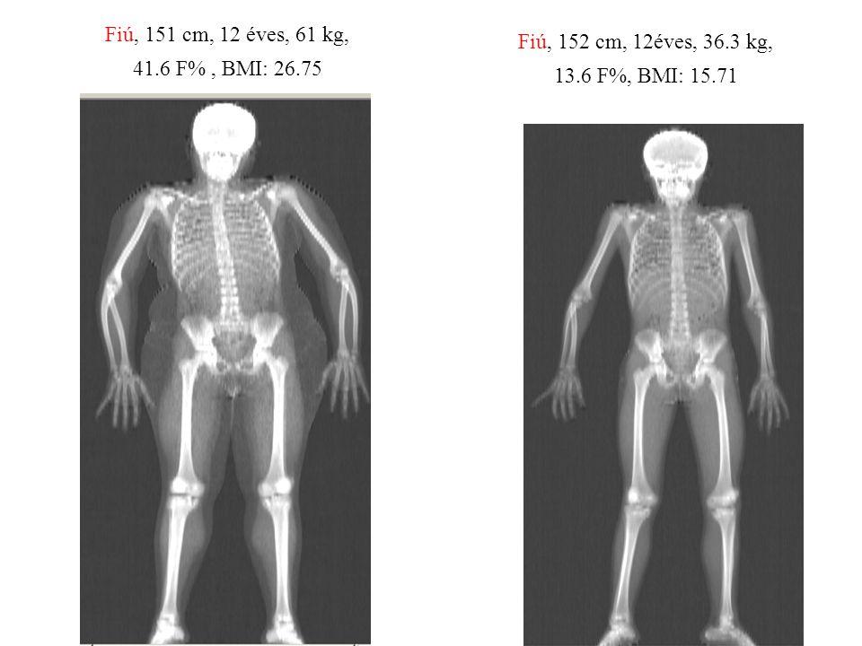 Fiú, 152 cm, 12éves, 36.3 kg, 13.6 F%, BMI: 15.71 Fiú, 151 cm, 12 éves, 61 kg, 41.6 F%, BMI: 26.75