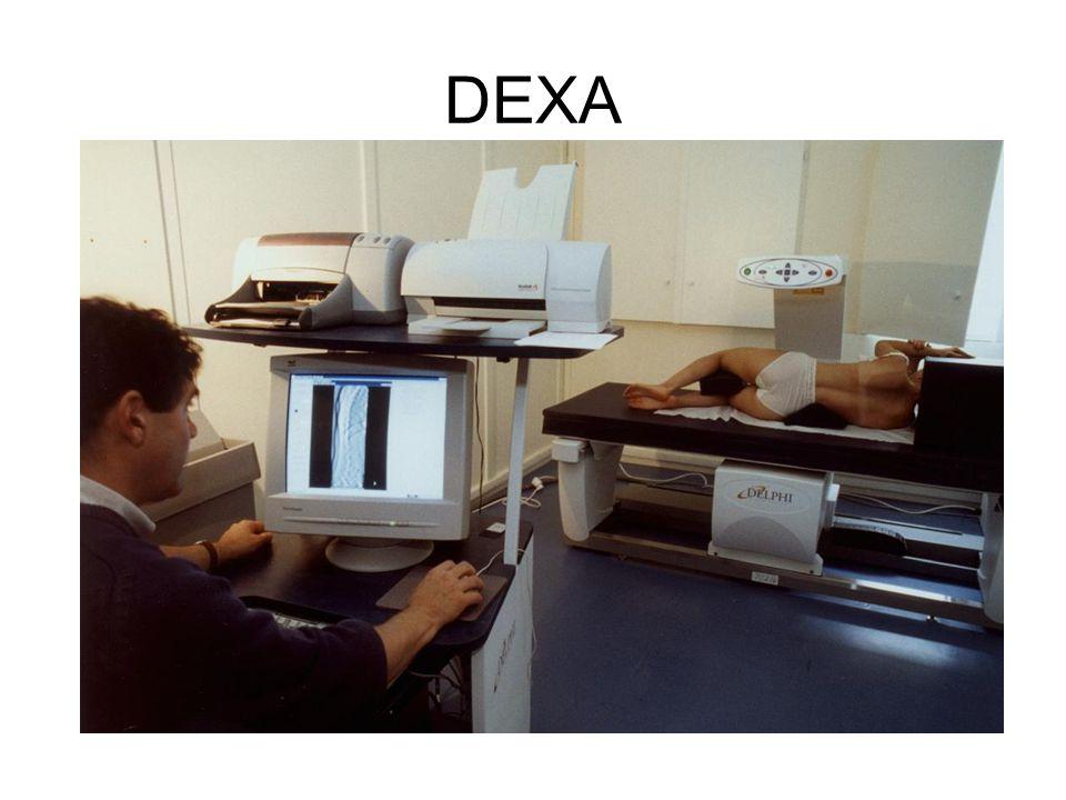 Dual Energy X-ray Absorptiometry