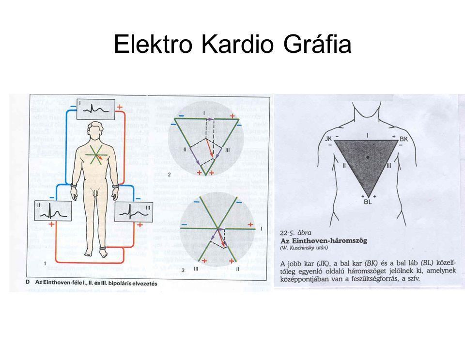 Elektro Kardio Gráfia