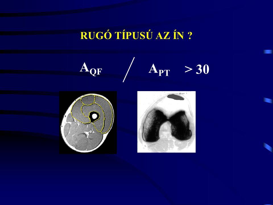 HUMAN MODELL E (MPa): In vivo ACL IdősFiatalRheosus majom 65.3 111186 Tibialis anterior 1200 Patella ín 260 E (MPa): Számítások: 1200 - 2900 MPa