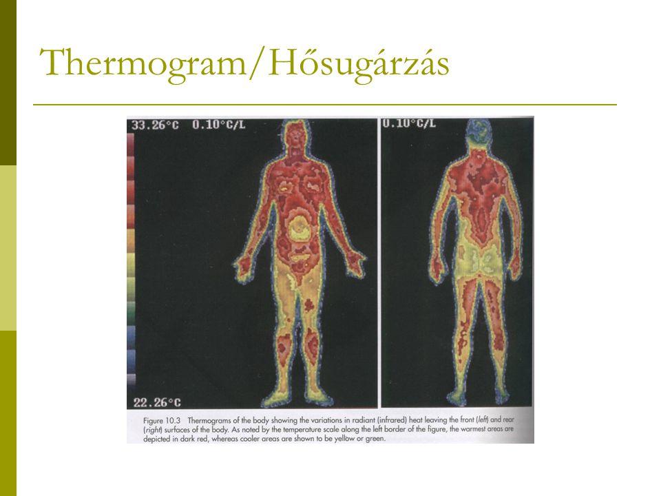 Thermogram/Hősugárzás