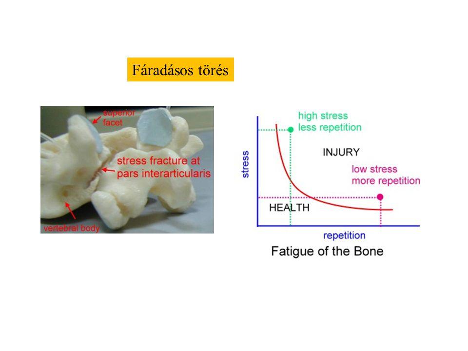 Csont regenerációja