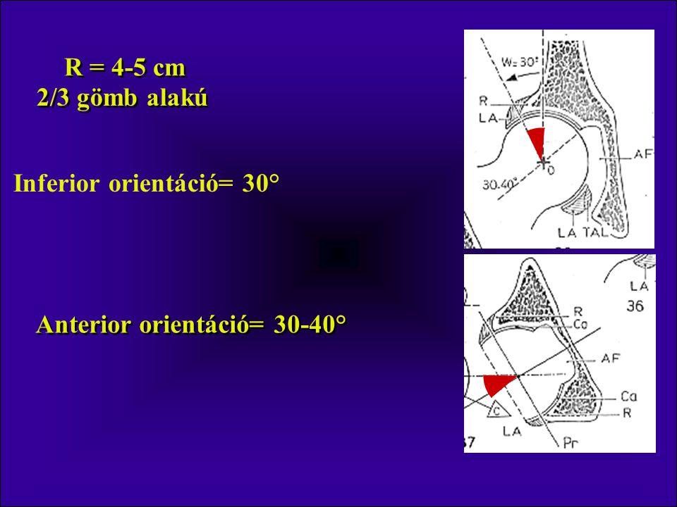 12-30° Újszülött 40° Anteverzió >12° Retroverzió <12° Antroverzió – befelé rotáció járás során Retroverzió – kifelé rotáció járás során