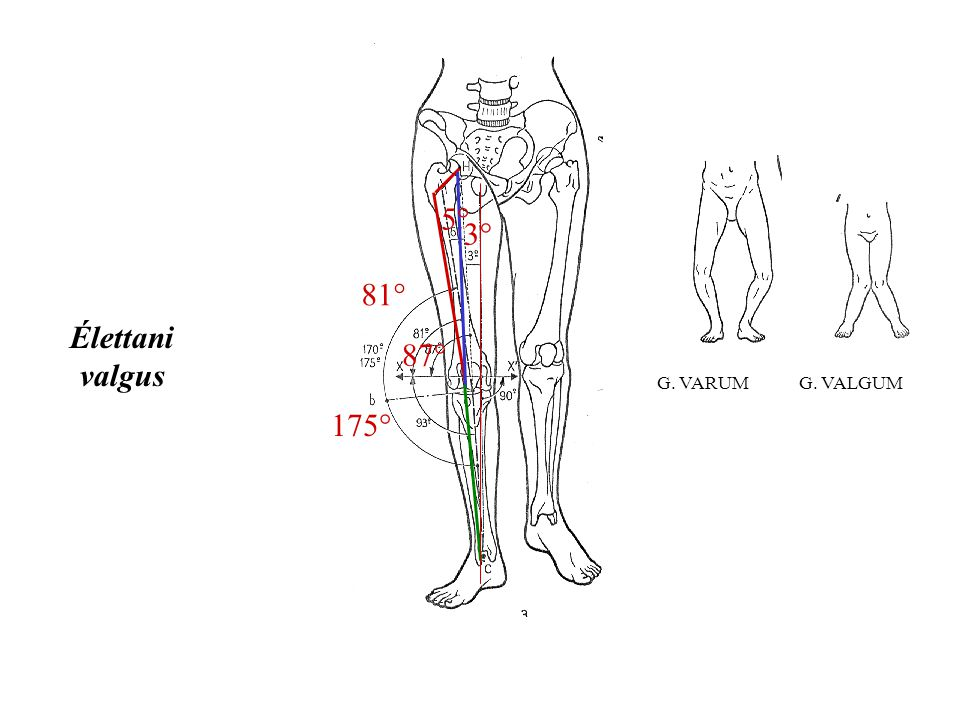 Natural distribution of the femoral mechanical–anatomical angle in an osteoarthritic population and its relevance to total knee arthroplasty Angela H.