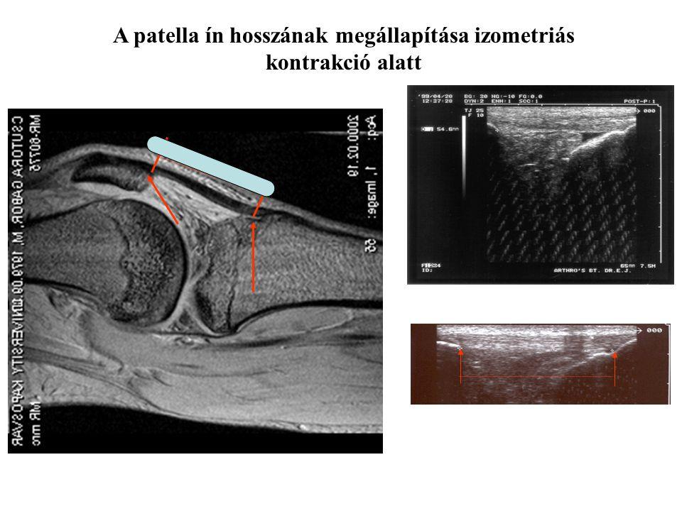 A patella ín hosszának megállapítása izometriás kontrakció alatt ULTRAHANGOS VIZSGÁLAT