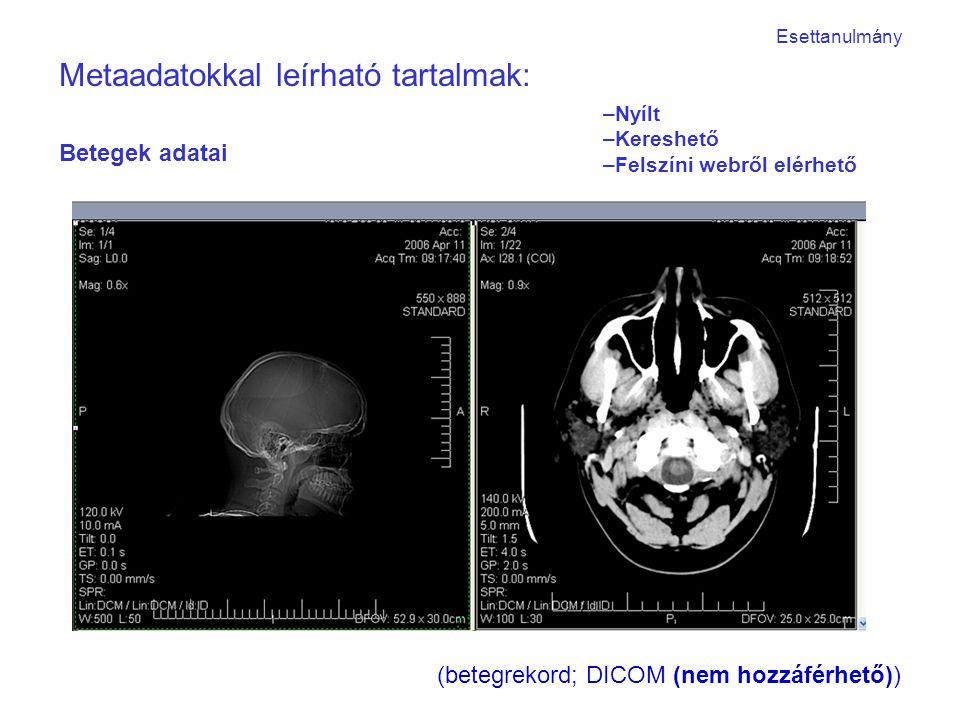 Betegek adatai (betegrekord; DICOM (nem hozzáférhető)) Metaadatokkal leírható tartalmak: Esettanulmány –Nyílt –Kereshető –Felszíni webről elérhető