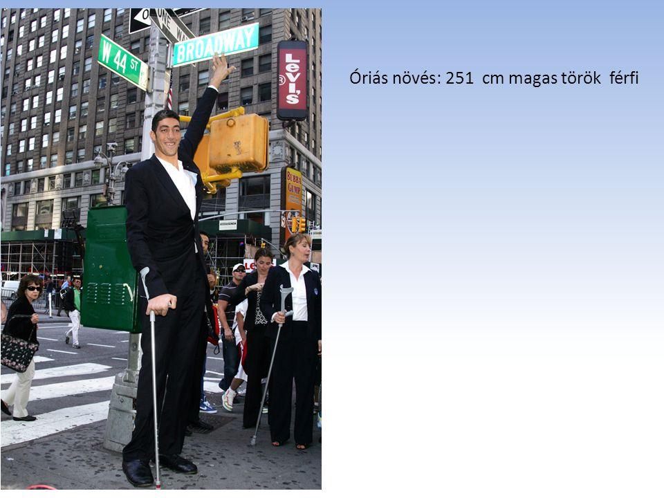 Óriás növés: 251 cm magas török férfi