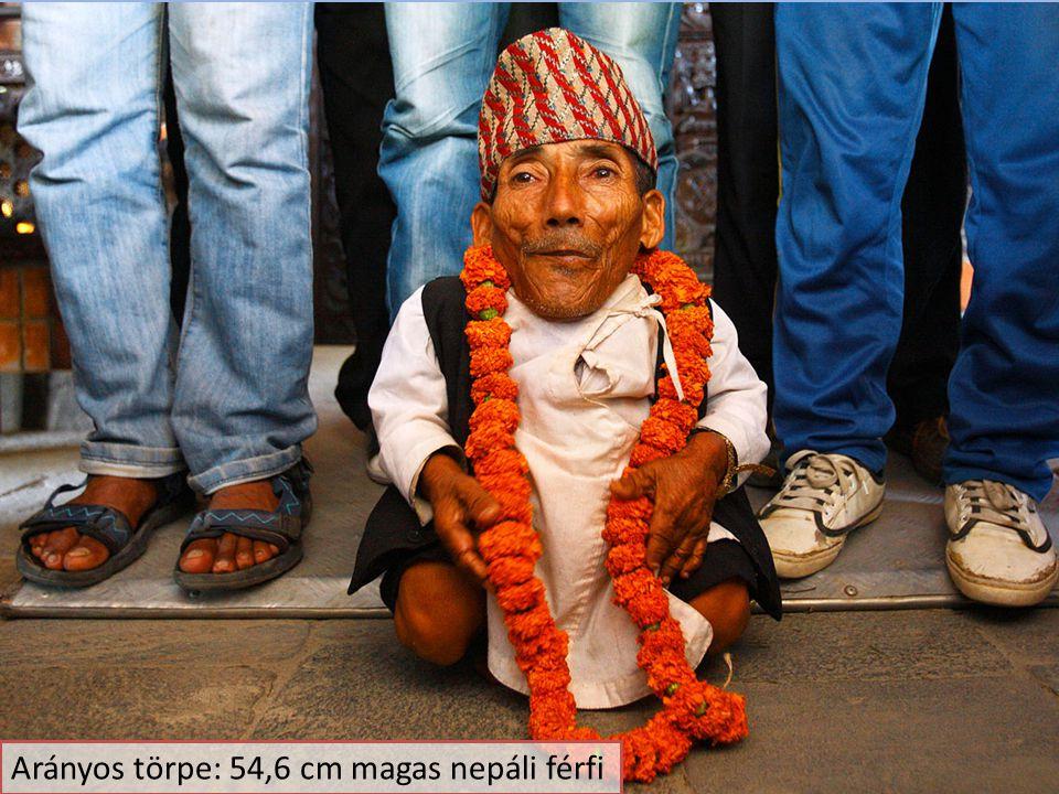 Arányos törpe: 54,6 cm magas nepáli férfi