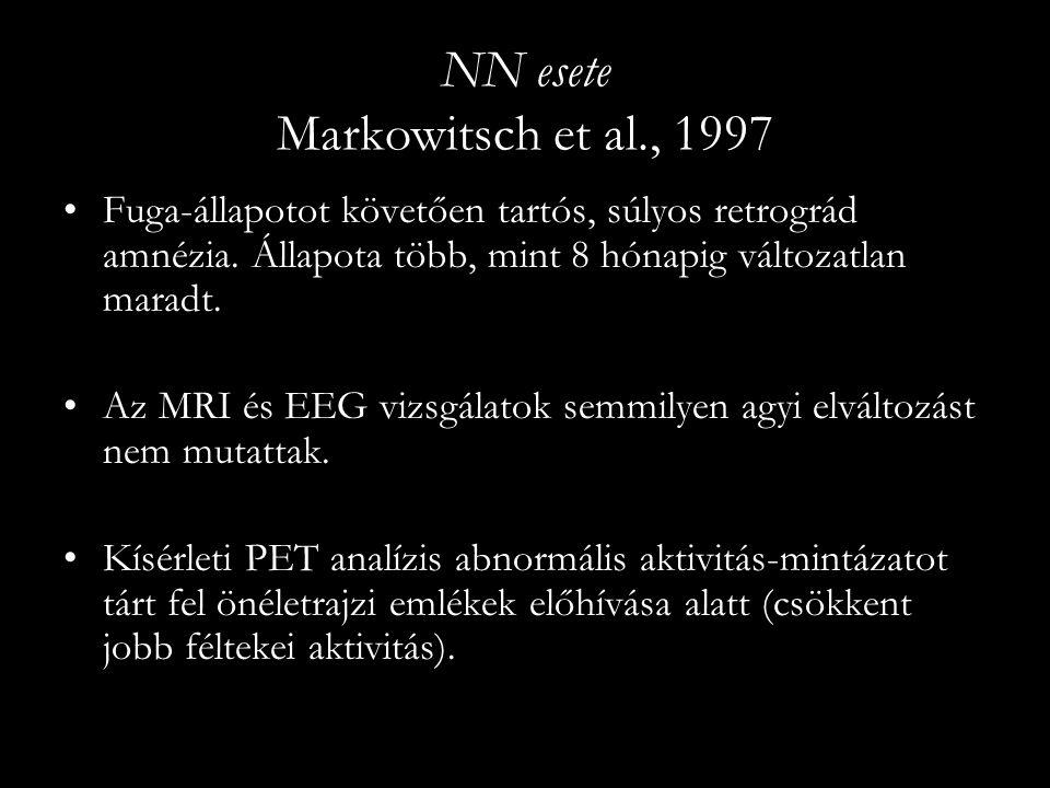 NN esete Markowitsch et al., 1997 Fuga-állapotot követően tartós, súlyos retrográd amnézia. Állapota több, mint 8 hónapig változatlan maradt. Az MRI é