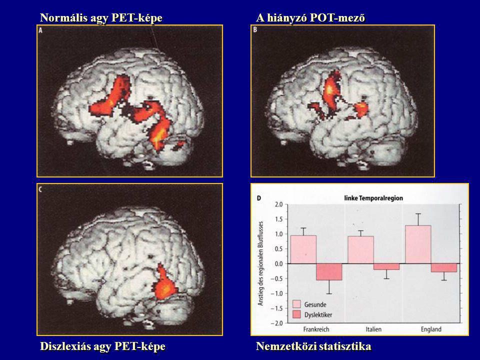 Normális agy PET-képe A hiányzó POT-mező Diszlexiás agy PET-képe Nemzetközi statisztika