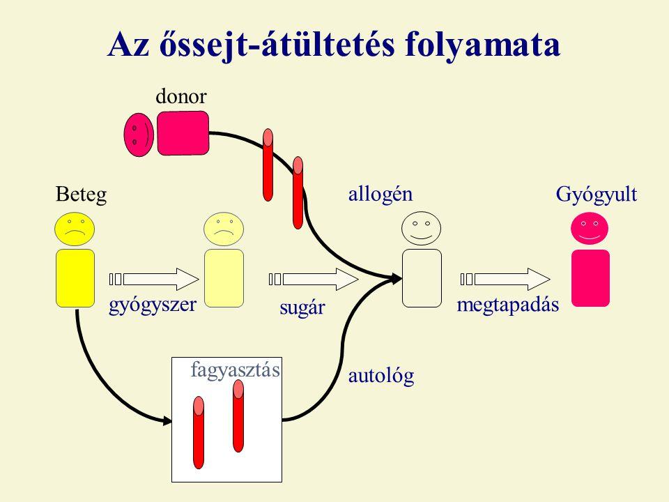 gyógyszer donor BetegGyógyult Az őssejt-átültetés folyamata allogén autológ fagyasztás sugár megtapadás