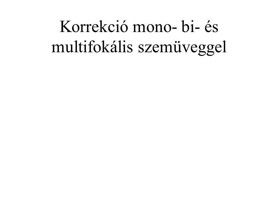 Korrekció mono- bi- és multifokális szemüveggel