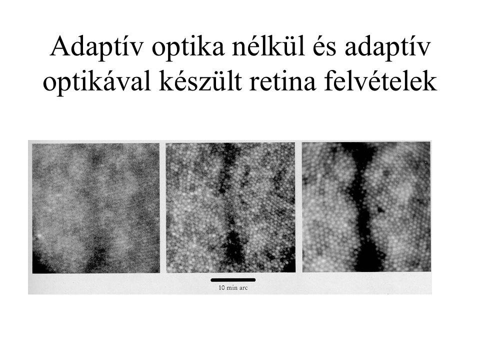 Adaptív optika nélkül és adaptív optikával készült retina felvételek