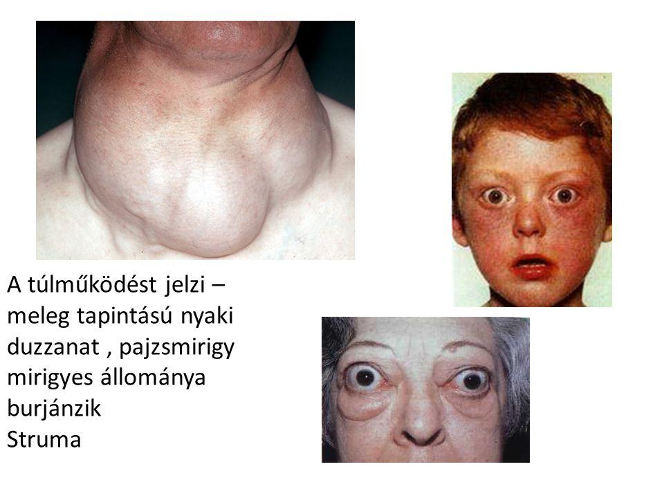 A túlműködést jelzi – meleg tapintású nyaki duzzanat, pajzsmirigy mirigyes állománya burjánzik Struma