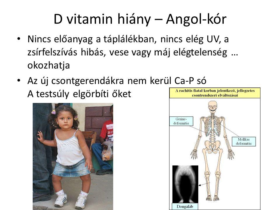 D vitamin hiány – Angol-kór Nincs előanyag a táplálékban, nincs elég UV, a zsírfelszívás hibás, vese vagy máj elégtelenség … okozhatja Az új csontgere