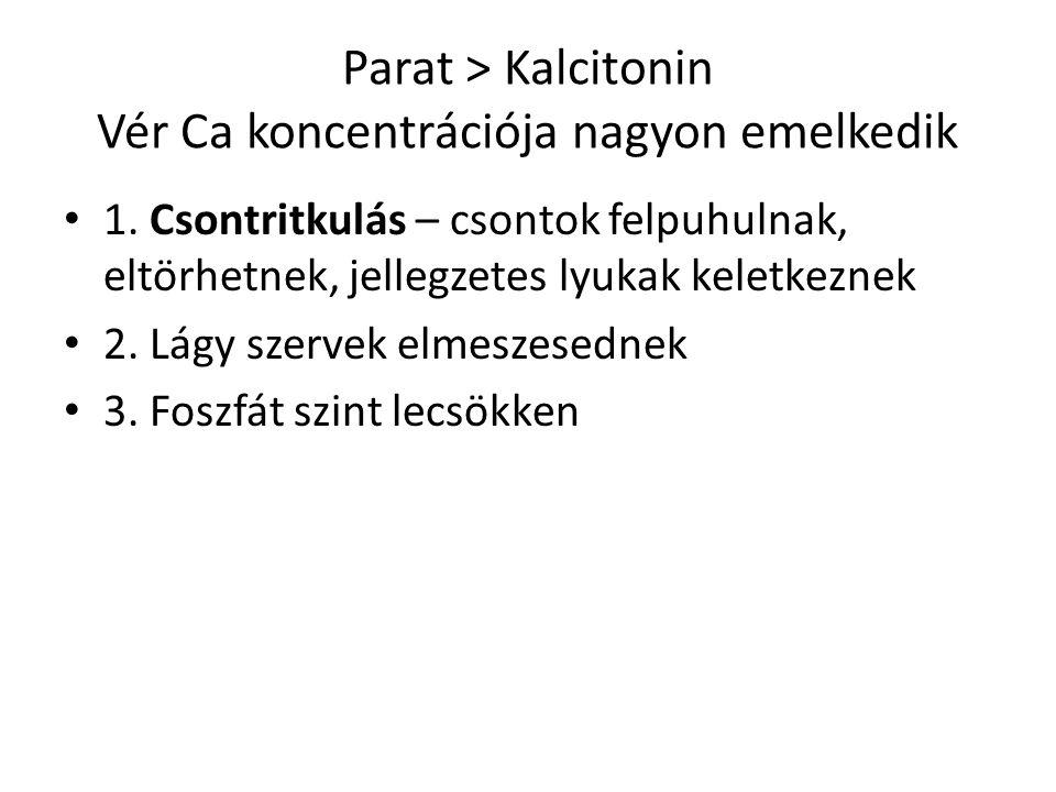 Parat ˃ Kalcitonin Vér Ca koncentrációja nagyon emelkedik 1. Csontritkulás – csontok felpuhulnak, eltörhetnek, jellegzetes lyukak keletkeznek 2. Lágy