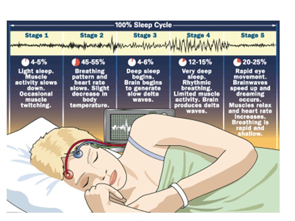"""A REM és az álmok REM fázisokban időnként hatalmas elektromos hullámok indulnak ki egy agytörzsi sejtcsoportból → nyakszirti agykéregbe, a látóközpontba """"álomgenerátor Szabályozás – kémiai gátakkal, hogy ezt csak REM fázisban (ébren : hallucináció pl."""