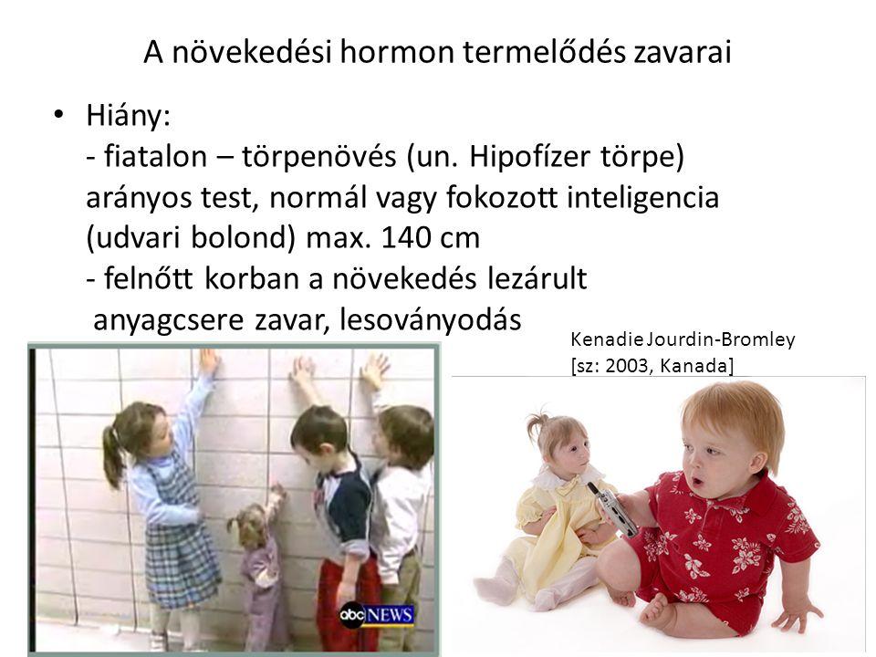 A növekedési hormon termelődés zavarai Hiány: - fiatalon – törpenövés (un. Hipofízer törpe) arányos test, normál vagy fokozott inteligencia (udvari bo