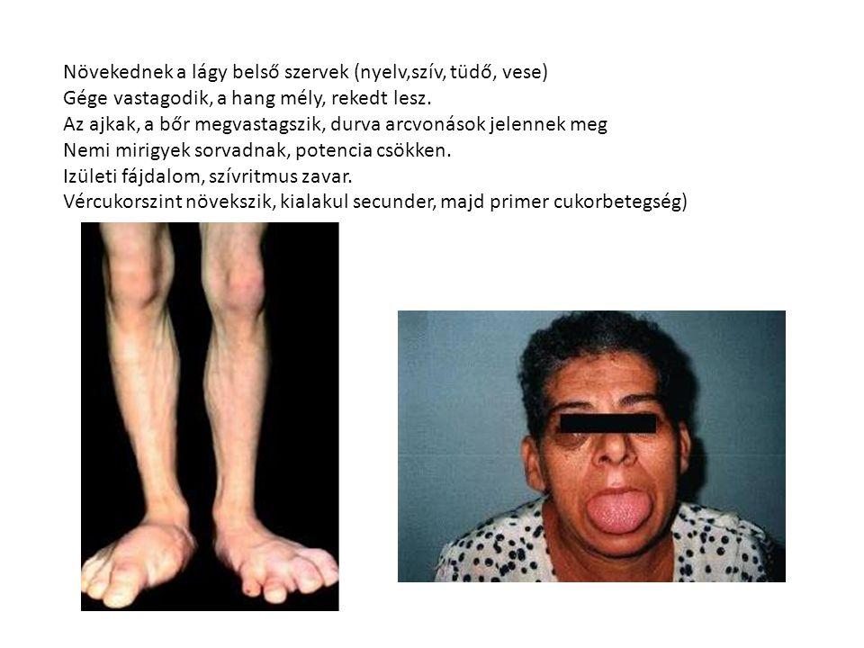 Növekednek a lágy belső szervek (nyelv,szív, tüdő, vese) Gége vastagodik, a hang mély, rekedt lesz. Az ajkak, a bőr megvastagszik, durva arcvonások je