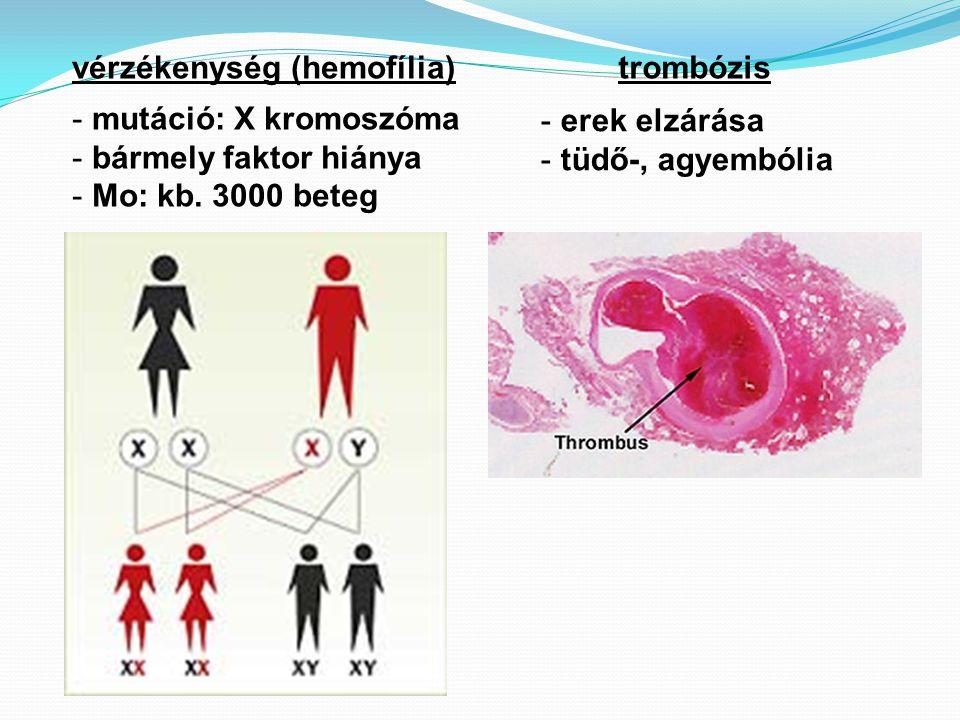 vérzékenység (hemofília)trombózis - mutáció: X kromoszóma - bármely faktor hiánya - Mo: kb. 3000 beteg - erek elzárása - tüdő-, agyembólia