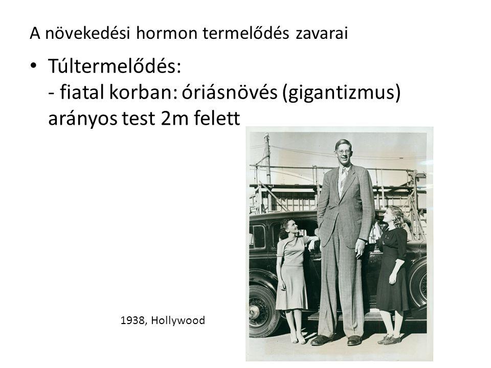 A növekedési hormon termelődés zavarai Túltermelődés: - fiatal korban: óriásnövés (gigantizmus) arányos test 2m felett 1938, Hollywood
