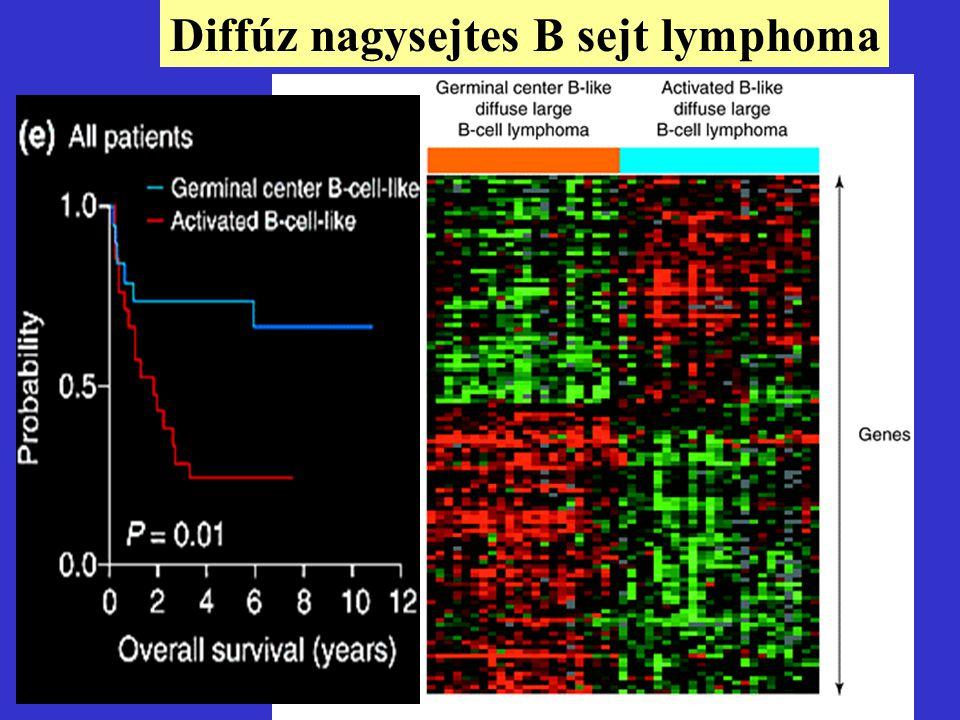 10 Diffúz nagysejtes B sejt lymphoma Szövettani Immunológiai PCR (egyes gének) módszerrel Eddig nem volt diff.