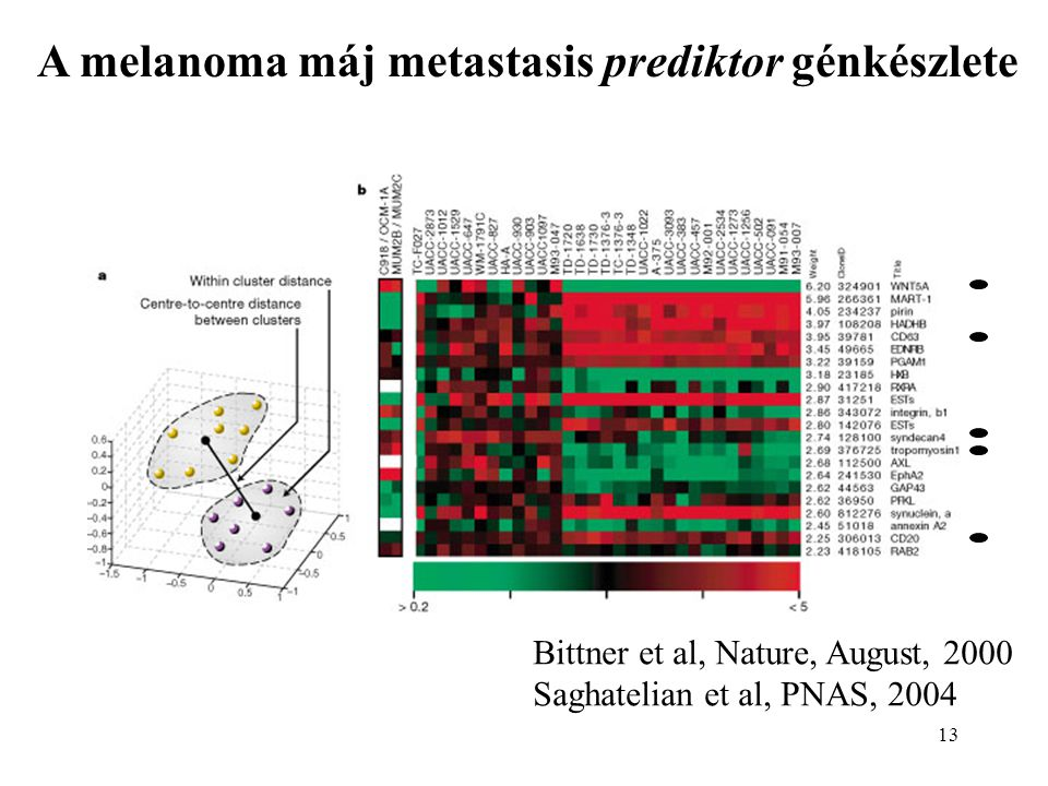 13 A melanoma máj metastasis prediktor génkészlete Bittner et al, Nature, August, 2000 Saghatelian et al, PNAS, 2004