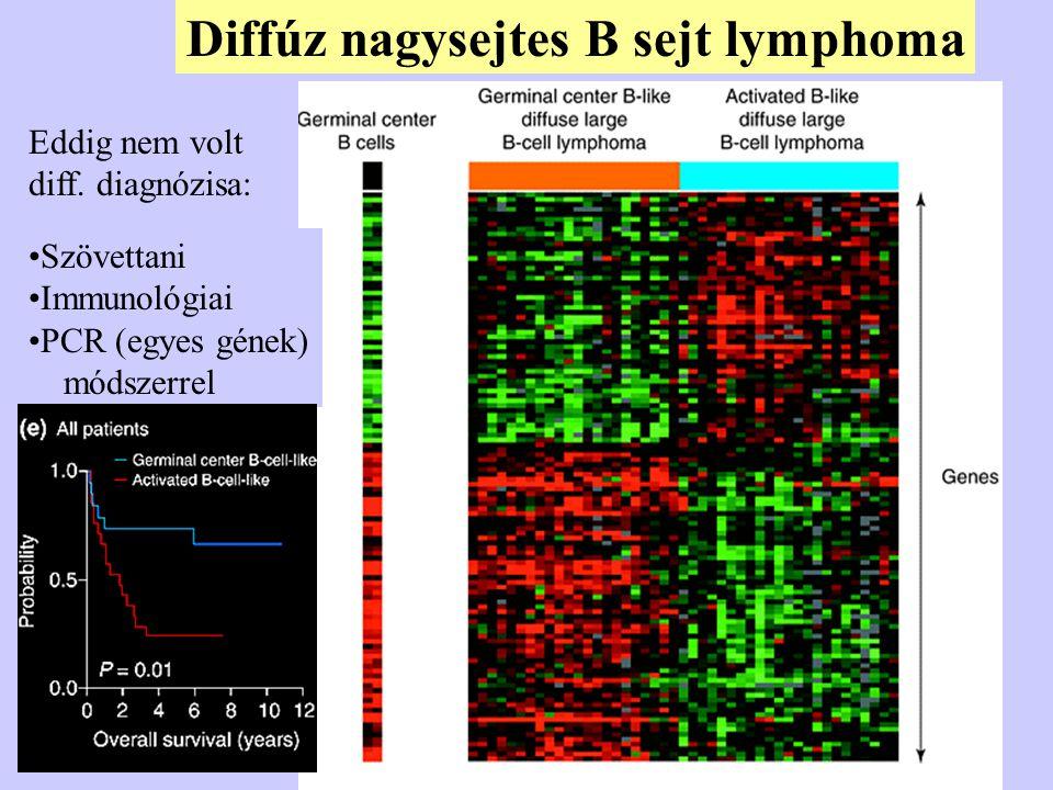 Diffúz nagysejtes B sejt lymphoma Szövettani Immunológiai PCR (egyes gének) módszerrel Eddig nem volt diff. diagnózisa: