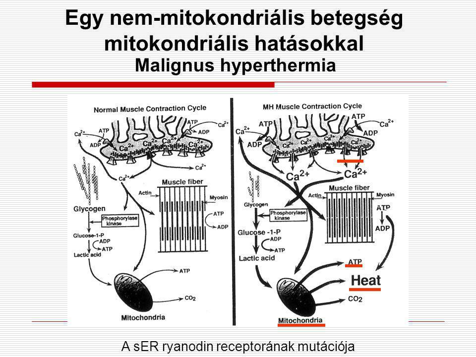 Malignus hyperthermia Egy nem-mitokondriális betegség mitokondriális hatásokkal A sER ryanodin receptorának mutációja
