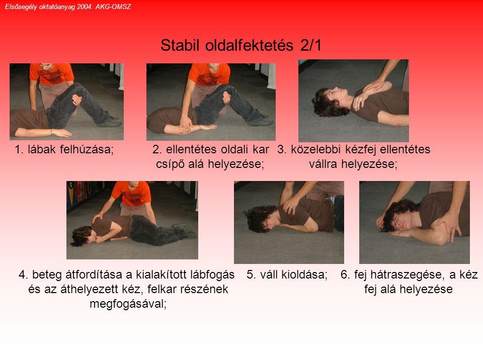 Stabil oldalfektetés 2/1 1. lábak felhúzása; 2. ellentétes oldali kar csípő alá helyezése; 3. közelebbi kézfej ellentétes vállra helyezése; 4. beteg á