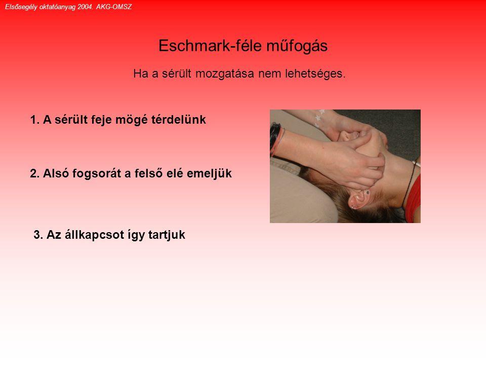 Eschmark-féle műfogás Ha a sérült mozgatása nem lehetséges. 1. A sérült feje mögé térdelünk 2. Alsó fogsorát a felső elé emeljük 3. Az állkapcsot így