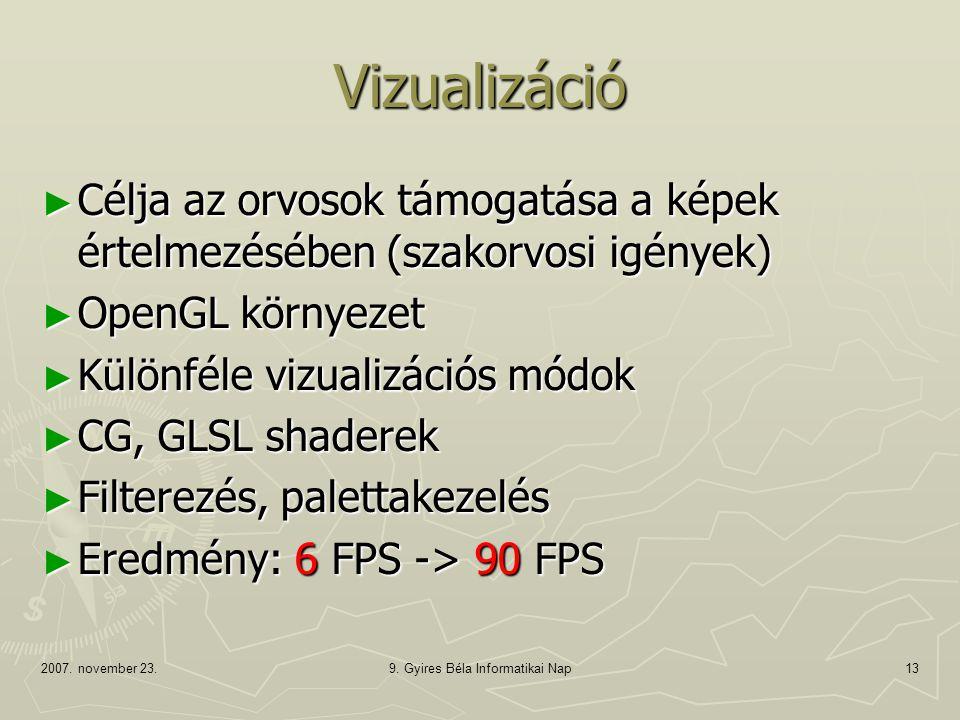 2007. november 23.9. Gyires Béla Informatikai Nap13 Vizualizáció ► Célja az orvosok támogatása a képek értelmezésében (szakorvosi igények) ► OpenGL kö