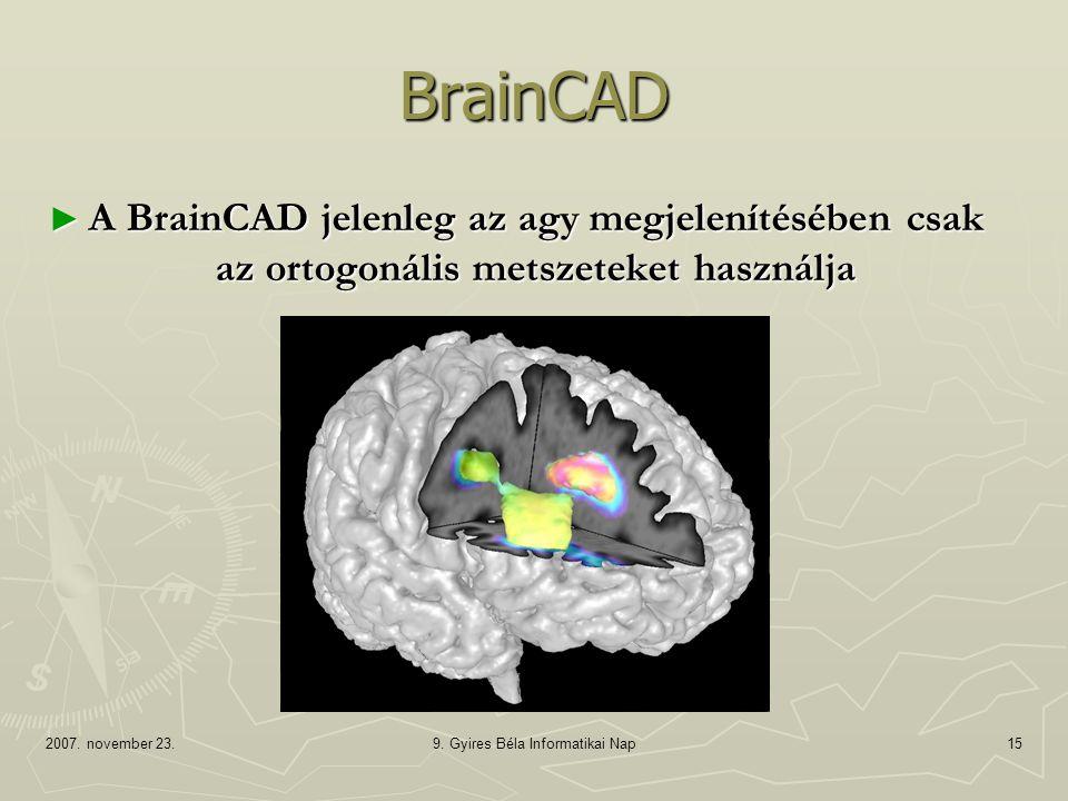 2007. november 23.9. Gyires Béla Informatikai Nap15 BrainCAD ► A BrainCAD jelenleg az agy megjelenítésében csak az ortogonális metszeteket használja
