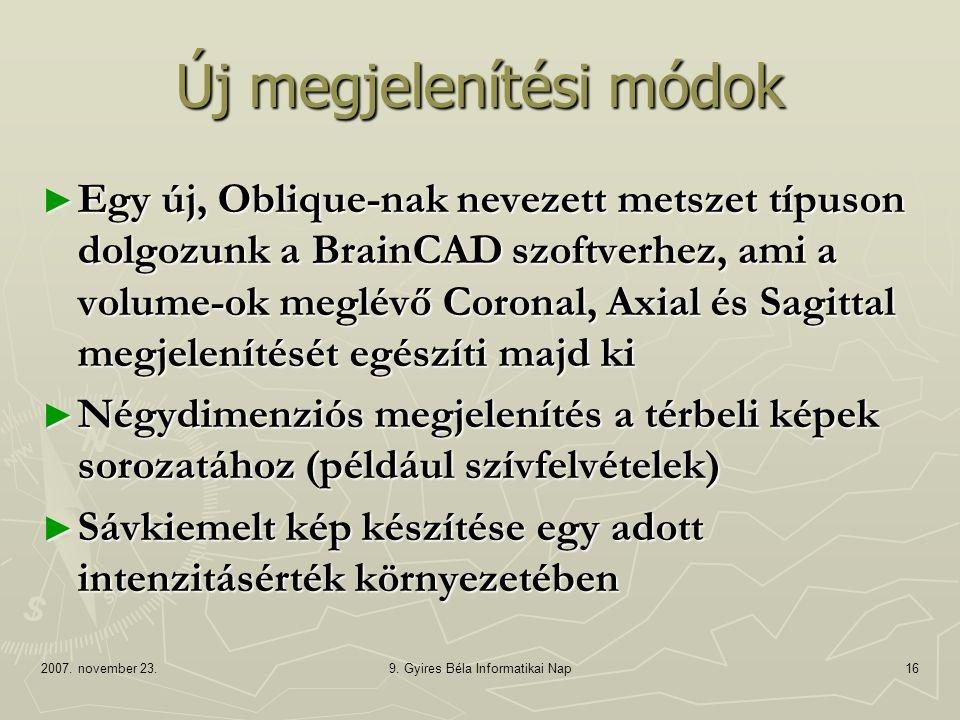 2007. november 23.9. Gyires Béla Informatikai Nap16 Új megjelenítési módok ► Egy új, Oblique-nak nevezett metszet típuson dolgozunk a BrainCAD szoftve