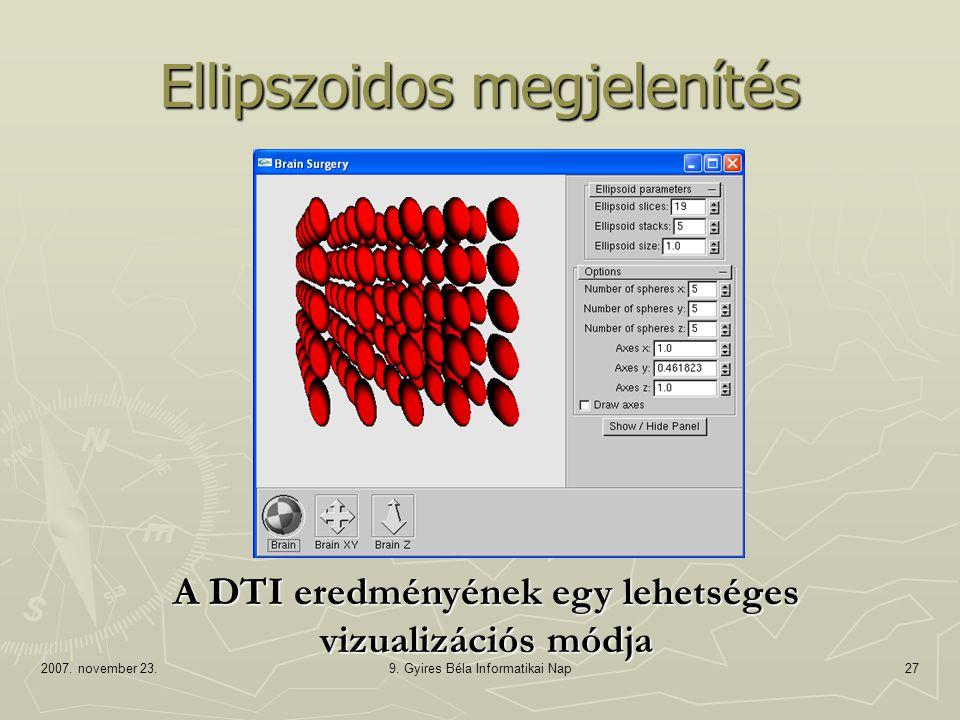 2007. november 23.9. Gyires Béla Informatikai Nap27 Ellipszoidos megjelenítés A DTI eredményének egy lehetséges vizualizációs módja