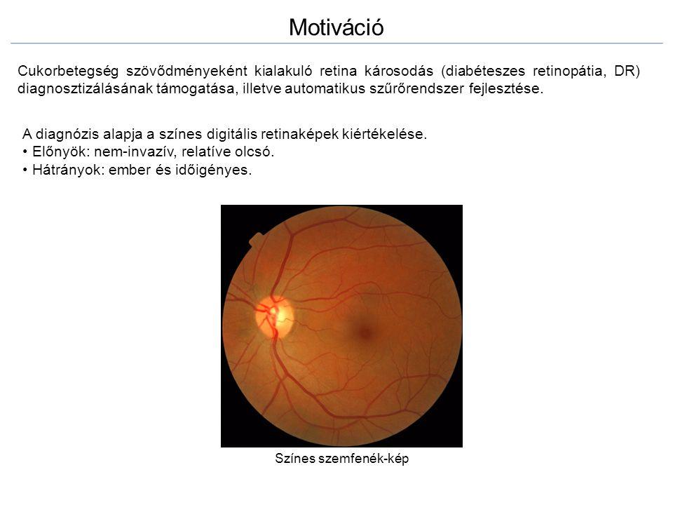 Motiváció Cukorbetegség szövődményeként kialakuló retina károsodás (diabéteszes retinopátia, DR) diagnosztizálásának támogatása, illetve automatikus s
