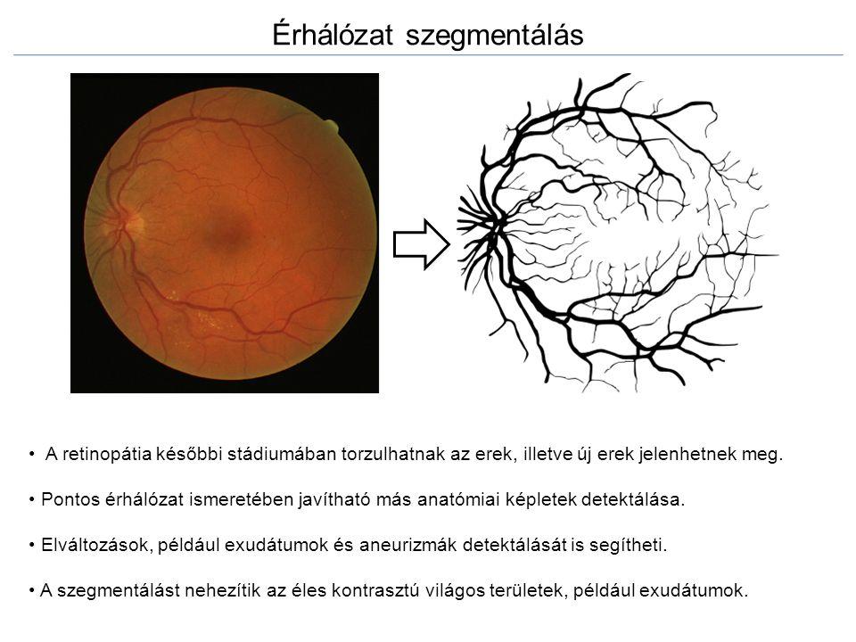 Érhálózat szegmentálás A retinopátia későbbi stádiumában torzulhatnak az erek, illetve új erek jelenhetnek meg. Pontos érhálózat ismeretében javítható