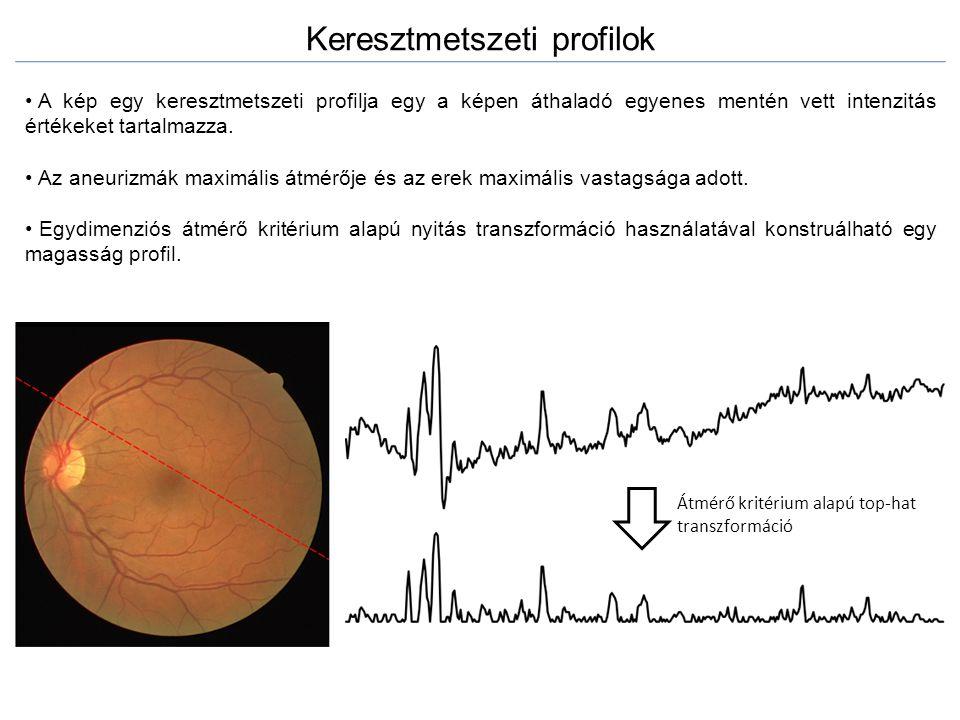 Keresztmetszeti profilok A kép egy keresztmetszeti profilja egy a képen áthaladó egyenes mentén vett intenzitás értékeket tartalmazza. Az aneurizmák m