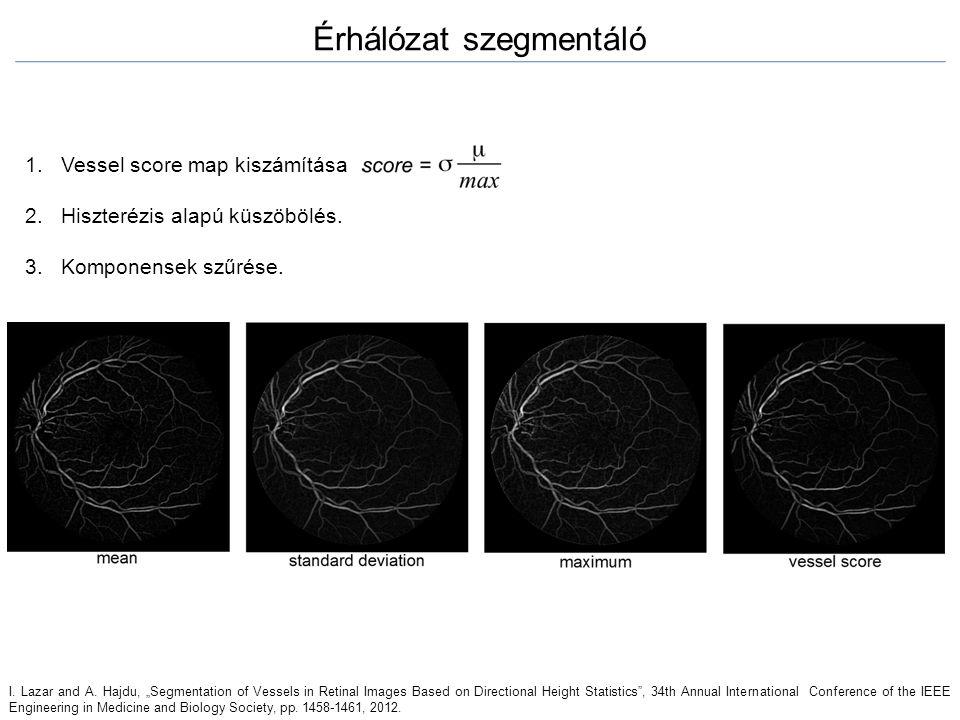 """1.Vessel score map kiszámítása 2.Hiszterézis alapú küszöbölés. 3.Komponensek szűrése. Érhálózat szegmentáló I. Lazar and A. Hajdu, """"Segmentation of Ve"""