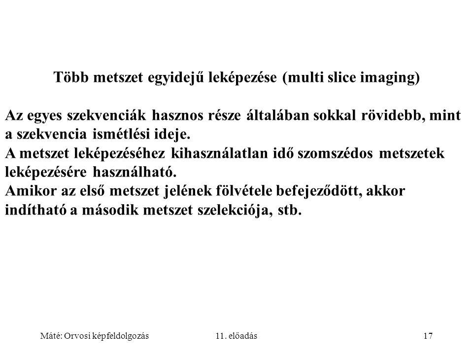 Máté: Orvosi képfeldolgozás11. előadás17 Több metszet egyidejű leképezése (multi slice imaging) Az egyes szekvenciák hasznos része általában sokkal rö