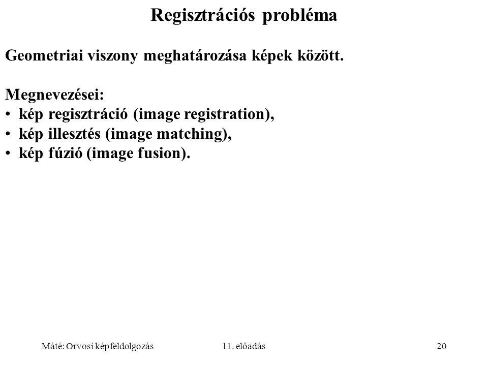 Máté: Orvosi képfeldolgozás11. előadás20 Regisztrációs probléma Geometriai viszony meghatározása képek között. Megnevezései: kép regisztráció (image r