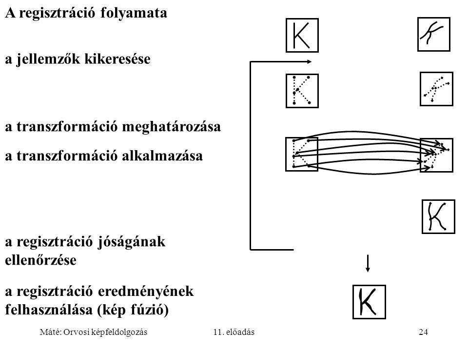 Máté: Orvosi képfeldolgozás11. előadás24 A regisztráció folyamata a regisztráció eredményének felhasználása (kép fúzió) a jellemzők kikeresése a trans